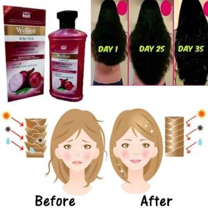 Wellice Onion Shampoo 400 ML Original